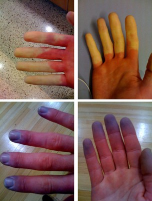 640px-Raynaud's_Syndrome